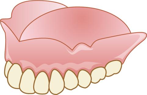 入れ歯 上顎
