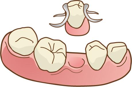 入れ歯 下顎