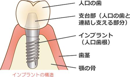 インプラント構造図