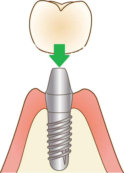 仮の歯を装着